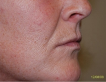 Pre Lip Augmentation The Clinic Sandymount Green, lip aug 1