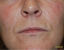 Pre Lip Augmentation The Clinic Sandymount Green,  lip aug 2