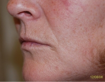 Pre Lip Augmentation The Clinic Sandymount Green, lipaug-3