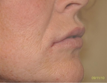 Post Lip Augmentation The Clinic Sandymount Green lipaug-4