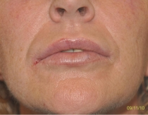 Post Lip Augmentation The Clinic Sandymount Green ipaug-5