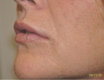 Post Lip Augmentation The Clinic Sandymount Green  lipaug-6